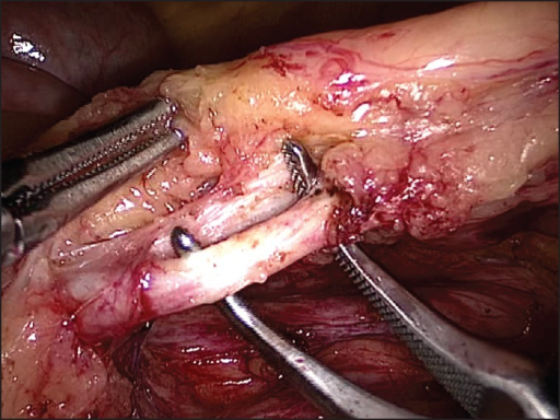 showing Inferior mesenteric artery continuing as superior haemorrhoidal artery, dissected free and ready for division after clipping