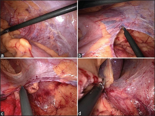 (a) Retraction of descending colon holding appendices (b) Incising lateral peritoneal attachments of descending colon (c) Readjusting traction and counter traction to keep lateral peritoneum stretched (d) Complete mobilisation of left sided colon upto splenic flexure