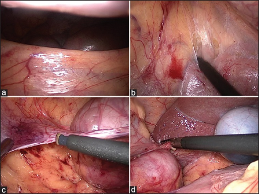 (a) Retracting root of mesentery in 'Chinese Fan pattern' holding Ileocolic pedicle (b) Medial to lateral dissection exposing second part of duodenum (c) Cutting lateral attachments of right colon (d) Complete dissection of right colon till hepatic flexure
