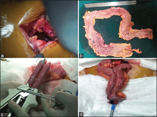 (a) Minilaparotomy incision (b) Removed specimen of total colon with rectum cut open (c) Applying linear GIA 80 stapler to create ileal pouch (d) Anvil of EEA stapler fixed at the end of ileal pouch