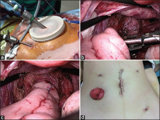 (a) Relaparoscopy with help of disk device (b) Attaching anvil to EEA stapler (c) Orienting pouch before firing stapler (d) Final appearance of abdomen at completion of surgery
