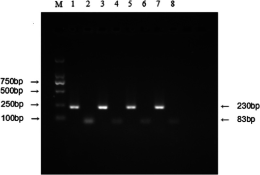 Relative expression level of IFITM3 mRNA was detected by RT-PCR.(M) Molecular marker. (1) and (2) respectively represent the mRNA expression level of β-actin and IFITM3 in tumor tissues with IFITM3 protein overexpression; (3) and (4) represent the mRNA expression level of β-actin and IFITM3 in their ANMs. (5) and (6) respectively represent the mRNA expression level of β-actin and IFITM3 in low IFITM3 protein expressed tumor tissues; (7) and (8) represent this expression level of β-actin and IFITM3 in their ANMs.