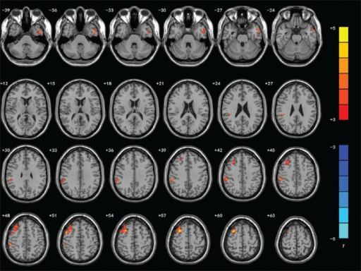 T-statistics maps between patients and normal control. Significantly increased fractional amplitude of low-frequency fluctuation (fALFF) value in multiple areas (P < 0.01 alphasim corrected), including left inferior temporal gyrus, right inferior parietal lobule and right middle frontal gyrus was exhibited. T-score bars are shown on the right. Hot and cold colors indicate fALFF increase or decrease, respectively. The left side of the image corresponds to the right side of the brain.