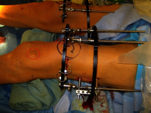 Intraoperative view showing bilateral Ilizarov frame application. Note the distal ring holding the patella will be pushed distally (arrow), transporting the patella to the outlined circle.