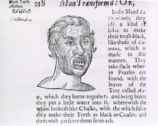 <p>Method of tooth mutilation by primative peoples - blackening.  Includes descriptive text.</p>