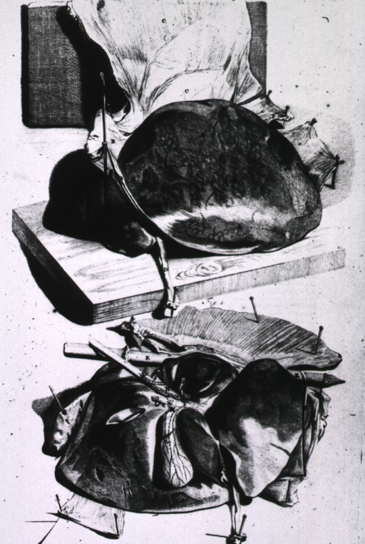 <p>Two views of the liver.</p>