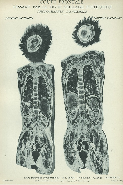 <p>Image of anterior and posterior views of man's body. Issued in seven installments by the flamboyant Parisian surgeon Eugene-Louis Doyen (1859-1916), this atlas of 279 &quot;heliotyped&quot; photographic plates of cross-sectioned bodies was a radical departure from past practice. Atlas d'anatomie topographique. Planche 33.</p>