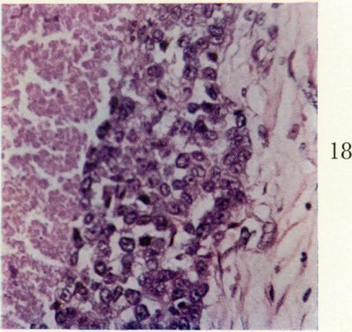 Thymus Gland Tumor Related Keywords - Thymus Gland Tumor ... | 512 x 482 png 647kB