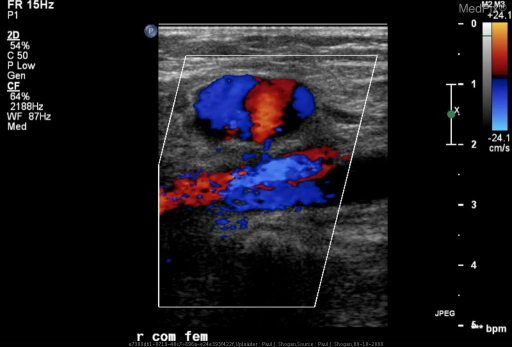 "In the region of the right common femoral artery, color doppler images reveal a cystic structure adjacent to the common femoral artery with a swirling pattern of blood flow in the lumen appearing as a characteristic ""yin-yang"" sign."