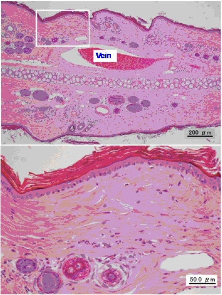 Typical photomicrographs of an untreated ear vein.
