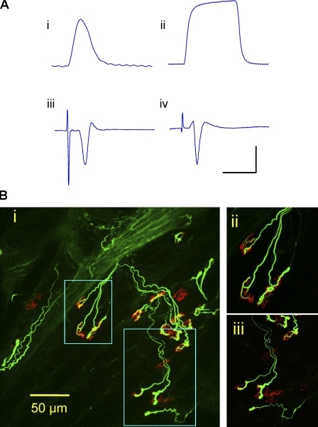 Functional motor innervation. (A) ATX3WldS mice show robust preservation of neuromuscular function 3 d after nerve lesion. (i and ii) Isometric single twitch (i) and 20-Hz tetanic tension (ii) responses of isolated FDB to tibial nerve stimulation. (iii and iv) Averaged (16 sweeps) extracellular evoked EMG responses to stimulation of 3-d axotomized FDB from ATX3WldS (iii) and WldS (iv). The x axis represents milliseconds, and the y axis represents millinewtons or microvolts. Bars: (i) 200 ms and 2 mN; (ii) 700 ms and 5 mN; (iii) 6 ms and 200 µV; (iv) 12 ms and 200 µV. (B) Confocal microscopy of axotomized FDB from an ATX3WldS line 5 mouse in which physiological recordings indicated robust preservation of neuromuscular function. Most motor endplates (TRITC–α-bungarotoxin staining; red) were innervated by neurofilament-positive axon collaterals and motor nerve terminals (green), but ∼20% of endplates were unoccupied. (i) Low power z-series projection. (ii and iii) Higher magnification images correspond to the boxed areas in panel i.