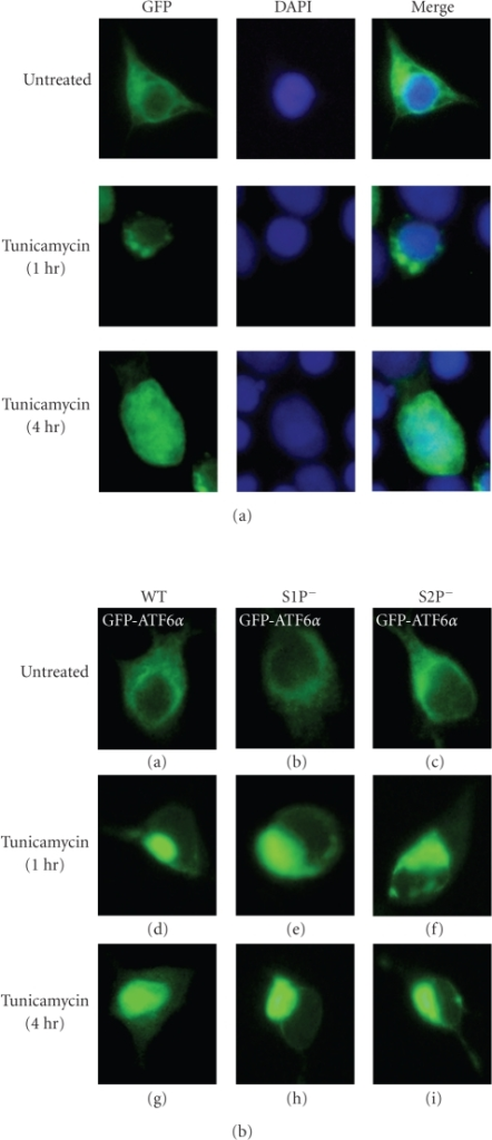 ER stress-induced processing and nuclear translocation of GFP-ATF6. (a) Twenty-four hours after transfection with pCMVshort-EGFP-ATF6 (WT), 293T cells were left untreated or treated with 1 μg/mL tunicamycin for the indicated periods. Cells were fixed in 4% paraformaldehyde, stained with DAPI, and then analyzed by fluorescence microscopy. (b) Twenty-four hours after transfection with pCMVshort-EGFP-ATF6α(WT), pCMVshort-EGFP-ATF6α(S1P−), or pCMVshort-EGFP-ATF6α(S2P−), 293T cells were left untreated or treated with 1 μg/mL tunicamycin for the indicated periods and then analyzed by fluorescence microscopy.