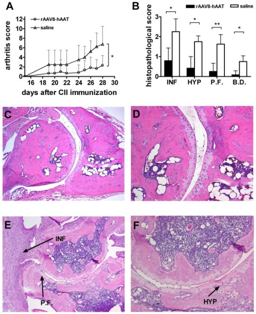Tissue protective effect of hAAT gene therapy in CIA mouse model. DBA/1 mice were intraperitoneally injected with rAAV8-CB-hAAT vector (2 × 1011 particles/mouse, n = 6) or saline (n = 4) two weeks before immunization with CII. Control group received saline. (A) Arthritis development was evaluated based on arthritis score (mean + SD). Open circle represent rAAV8-CB-hAAT vector injected group, open triangle represent control group. Mice were sacrificed on day 28 after CII immunization, hind limbs were harvested and processed for histological assessment. *p < 0.05 by Mann-Whitney U-test. (B) Histopathological evaluation of arthritis development. Mice in gene therapy group (black bars) or control group (empty bars) were evaluated according to histopathological changes by two blinded pathologists. Each hind paw was evaluated based on a scale ranging from 0-3. (mean+SD). *p < 0.05, **p < 0.01 by Mann-Whitney U-test. (INF: Infiltration of Immune Cells, HYP: Hyperplasia, P.F.: Pannus Formation, B.D.: Bone Destruction) (C,D) Representative joint section from mice receiving hAAT gene therapy. (E,F) Representative joint section from mice in control group (saline injection). Magnification: C,E: 100x; D,F: 200x.