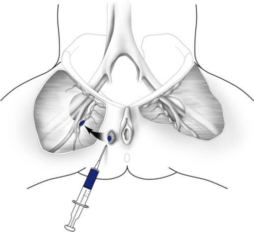 Sentinel lymph node mapping sentinel lymph nodes are l open i sentinel lymph node mapping sentinel lymph nodes are localized by perilesional injection of 99 mtc ccuart Gallery