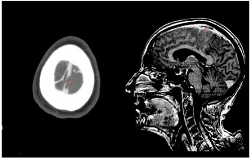 Brain computed tomography showing superior sagittal sinus thrombosis and implication of a cortical vein (arrows).