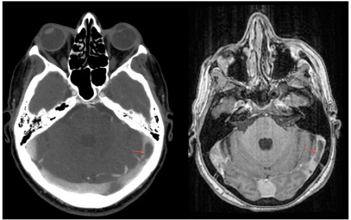 T1-weighted brain magnetic resonance showing left transverse sinus thrombosis (arrows).