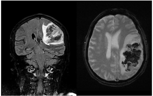 T2-weighted FLAIR magnetic resonance showing massive left frontotemporal hemorrhagic infarction.