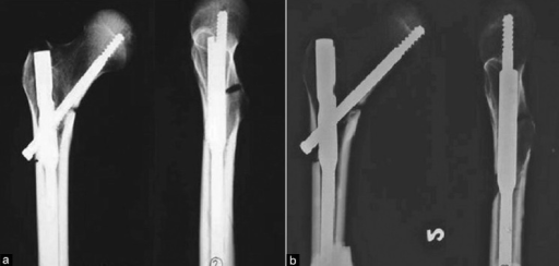 X-rays of cadaveric femoral specimen (a) with unstable reverse oblique trochanteric fracture with posteromedial defect implanted with proximal femoral nail and it was subjected to cyclical compressive load. It remained stable (b) after 50,000 cycles