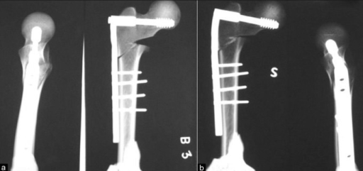 X-rays of cadaveric femoral specimen (a) with unstable reverse oblique trochanteric fracture with posteromedial defect implanted with 95° dynamic hip screw and it was subjected to cyclical compression load. (b) It failed after 1962cycles. Plate bending of 10°, and screw bending of 1° were observed at the end of cyclical loading