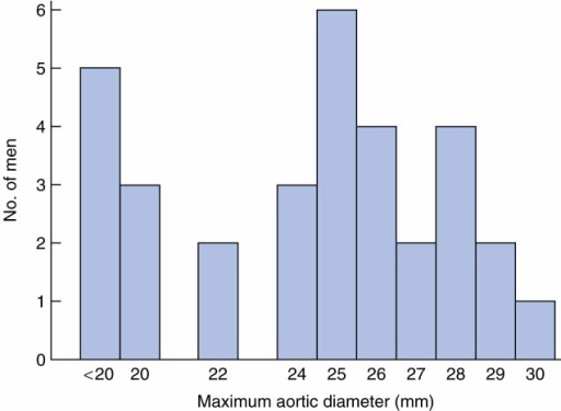 Distribution of baseline aortic diameter among 32 men with ruptured abdominal aortic aneurysm who originally screened normal