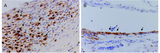 Immunohistochemical staining for macrophages. Tissue sections (x200 magnification) of (A) arthritic and (B) contralateral knees with anti-rat CD68 (ED1) staining (brown staining) for synovial macrophages. Arrows indicate examples of ED1 positive macrophages.