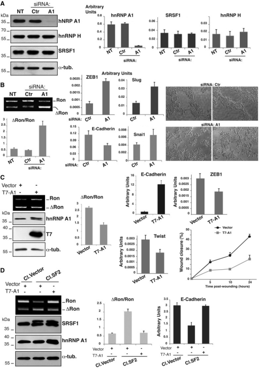 HnRNP A1 affects the MET program. (A) HEK-293 cells not treated (NT) or transfected with hnRNP A1 (A1) or with control siRNAs (Ctr). Total cell extracts were probed by western blotting with the following antibodies: anti hnRNP A1 (9H10), anti-hnRNP H, anti-SRSF1 (mAb96) and anti-α-tubulin; the three histograms on the right show the relative level of hnRNP A1, SRSF1 and hnRNP H transcripts quantified by qRT-PCR. (B) The same cells (not treated or transfected with siRNA oligos) were analyzed in (i) RT-PCR to determine the splicing profile of the endogenous Ron transcripts as in Figure 3A and (ii) qRT-PCR for the expression level of the indicated EMT markers. Cells morphologies were examined under a phase-contrast microscope (objective 10× with additional magnification 1.6×). (C) HeLa cells were transfected with T7-hnRNP A1 or with the empty vector ('Vector') with an efficiency of ∼60%; RNAs were analyzed with RT-PCR (as in Figure 3A) to determine the splicing profile of Ron exon 11 and cell extracts were analyzed in western blotting to assess the abundance of the indicated proteins and the expression of T7-hnRNP A1. The same cells were also analyzed in qRT-PCR for the expression levels of selected EMT markers. Panel on the right shows the results of the wound healing assay. Transient transfected HeLa cells were grown to confluence and wounded by dragging a 200 μl pipette tip through the monolayer (0 h); cell migration was measured at designated times (5, 10 and 24 h) after wounding. (D) MDA-MB-435S cells stably transfected with T7-SRSF1 (Cl.SF2) or with the empty vector (Cl.Vector) (29). Cl.SF2 and Cl.Vector cells were transfected with T7-hnRNP A1 or with the empty vector ('Vector') as indicated; total cell extracts were analyzed in western blotting to assess the level of the indicated proteins. (E) Total RNAs from the same cells were analyzed by RT-PCR (as in Figure 3A); the histogram below shows the ΔRon/Ron ratio. Expression level of the epithelial marker E-cadherin in the different cells as assessed by qRT-PCR is also shown.