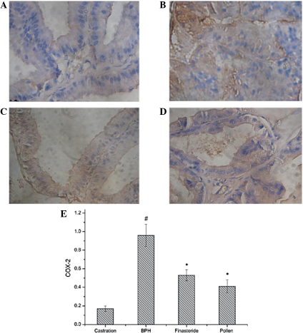 Immunohistochemical staining of COX-2 in the prostate tissues of rats in the (A) castration, (B) BPH, (C) finasteride and (D) pollen groups. (E) Quantitative image analysis of the immunohistochemical staining expressed as optical densities across 10 fields for each rat section. #P<0.05, vs. castration; *P<0.05, vs. BPH. Castration, corn oil injection (sc) + PBS (p.o.); BPH, testosterone (sc) + PBS (p.o.); finasteride, 5 mg/kg finasteride (p.o.) + testosterone (sc); pollen, 88.7 mg/kg rape pollen SFE-CO2 (p.o.) + testosterone (sc); SFE, supercritical fluid extract; BPH, benign prostatic hyperplasia; PBS, phosphate-buffered saline; COX-2, cyclooxygenase-2. Magnification, ×100.