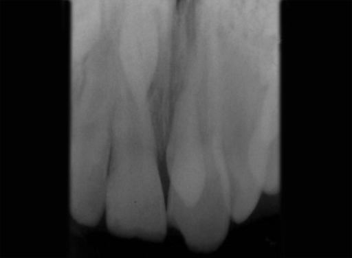 Intraoral periapical radiograph revealing two supernumerary teeth (case II)