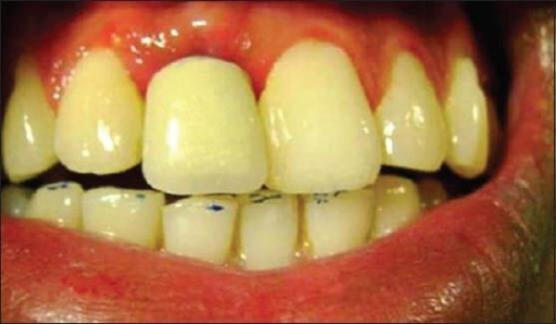 Picture showing restored implant prosthesis