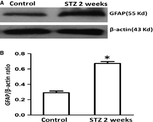 GFAP was up-regulated in rat DRG 14 days after STZ injection, as demonstrated by Western blot study. GFAP protein expression in STZ-treated rats was significantly increased in comparison with that in control rats. N = 6 for each of the groups. The asterisk indicates P < 0.05 compared with control, error bars indicate SD.