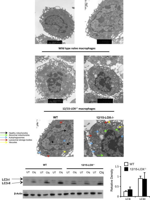 "Macrophages from 12/15-LOX deficient mice show altered membrane structure on electron microscopy but LC3 expression is similar. Panel A. EM analysis of wild type and 12/15 LOX−/− peritoneal macrophages. Peritoneal cells from wild type mice were analyzed using TEM as described in Section ""Materials and methods"" at 10,000× magnification. Lower panels. Cells were analyzed by TEM at 20,000× magnification. Arrows indicate healthy mitochondria (in WT) (black), abnormal mitochondria (in 12/15-LOX−/−) (green), and numerous autophagosomes (blue), lysosomal storage bodies (red) and vacuoles (yellow). Panel B. Macrophages from 12/15-LOX−/− mice express similar LC3 levels to wild type. Macrophages were stimulated overnight using chloroquine (100 µM), before LC3-I and -II analysis using Western blot. Data are combined from three representative gels, with one shown as illustration. Each gel had n=3 for both WT and 12/15-LOX−/− mice. Relative density was determined for LC3-I and -II, then divided by the actin loading control density, thus the graph represents a combined n=9, mean±SEM."