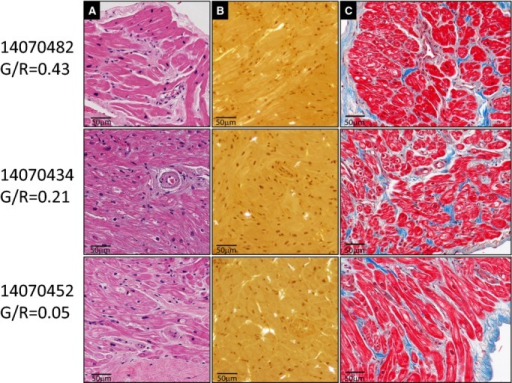 Representative histologic features in atrial samples from patients with low, medium, and high green/red ratio (G/R) values. For each patient sample (rows), the columns from left to right display images showing: hematoxylin and eosin–stained section (A); Congo red–stained section with visualization using polarized light (B); and Masson's trichrome–stained section demonstrating collagen (blue) representing areas of fibrosis (C). The G/R values are shown to the left of the images.