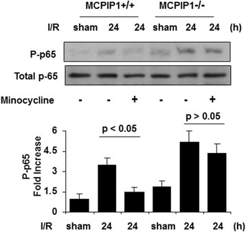 Inhibition of NF-κB activation in the ischemic brain by minocycline treatment in the wild type, but not in MCPIP1-deficient mice. A representative Western blot shows protein levels of p-65 phosphorylation. The phosphorylation of p-65 was significantly reduced at 24 h after MCAO in minocycline-pretreated wild type mice compared to that of the control. In MCPIP1-deficient mice, there was no significant difference in p-65 phosphorylation level between the minocycline-pretreated and control group without minocycline treatment. Densitometric analysis was used to quantify phospho-p-65 protein levels versus total p-65 in three independent Western blots, and the data are expressed as the normalized folds with respect to sham. Values represent mean ± SD. MCAO, middle cerebral artery occlusion; MCPIP1, monocyte chemotactic protein-induced protein 1.