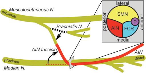 Illustration Of Transfer Of Brachialis Nerve To Anterio Open I