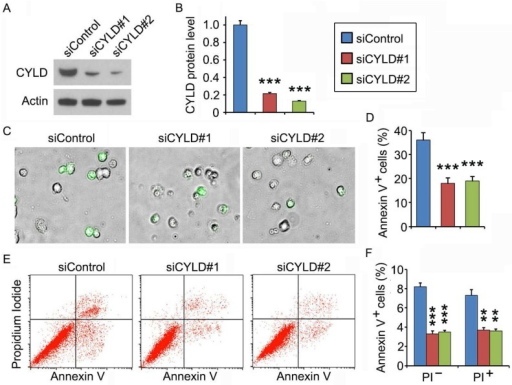 CYLD depletion attenuates noscapine-induced apoptosis in primary leukemia cells. (A) Immunoblots for CYLD and β-actin expression in control and CYLD siRNA-treated primary leukemia cells. (B) Experiments were performed as in A, and CYLD protein level was determined by densitometric analysis of the blots. (C) Fluorescence/phase-contrast images of primary leukemia cells transfected with control or CYLD siRNAs followed by treatment with 2 μM noscapine for 36 hours. Cells were stained with Alexa Fluor 488-conjugated annexin V (green). (D) Experiments were performed as in C, and the percentage of annexin V-positive cells was quantified. (E) Primary leukemia cells were transfected with control or CYLD siRNAs followed by treatment with 2 μM noscapine for 24 hours. Cells were then stained with PI and Alexa Fluor 488-conjugated annexin V, and analyzed by flow cytometry. (F) Experiments were performed as in E, and the percentage of annexin V-positive cells was quantified. **, p < 0.01; ***, p < 0.001.
