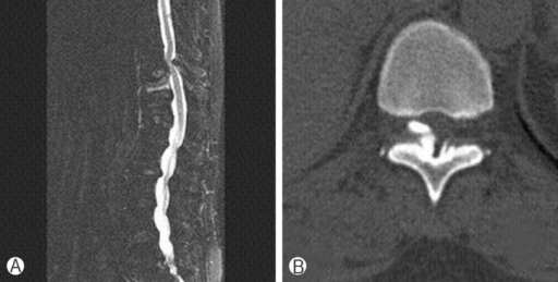 A 67-year old female patient (case 3). A & B: Fat suppression magnetic resonance image and computed tomography scan show fresh compression fracture at T11 level and ossification of yellow ligament at T10-T11 level.