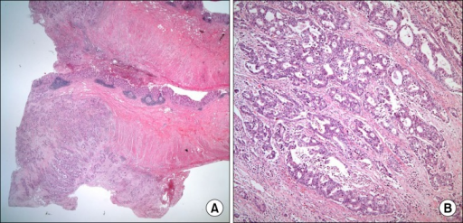Gross and microscopic findings of the surgical specimen: (A) The section shows multiple tumors infiltrating the appendiceal serosa through the submucosa (H&E, ×12.5). (B) The cancer cells are moderately differentiated adenocarcinoma (H&E, ×100).