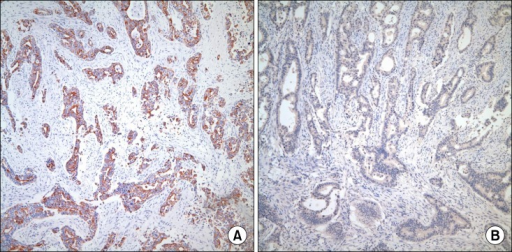 Immunohistochemical staining of the surgical specimen: Immunohistochemical staining revealed positive expression of cytokeratin 7. (A) but negative expression of Cdx 2. (B) in the tumor cells (×100).