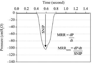 Example of measurement and calculation of Maximum Relaxation Rate ofinspiratory muscles (MRR) from Sniff Nasal Inspiratory Pressure(SNIP).