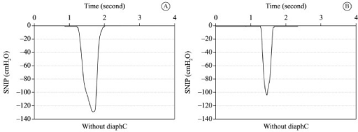 Graphic representation of Sniff Nasal-Inspiratory Pressure (SNIP) kinetics.Figure (A) without diaphragmatic control and (B) with diaphragmatic control inthe same subject. On the left, there is a peak pressure of ~130cmH2O and a total duration time of sniff ~630 milliseconds; on theright, there is a peak pressure of ~103 cmH2O and a total durationtime of ~350 milliseconds. diaphC: diaphragmatic activation control.