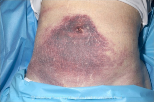 Clinical photography of peri-umbilical ecchymosis.