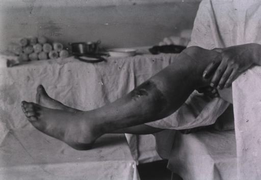 <p>View of a repaired lower left leg from a bullet(?) wound.</p>