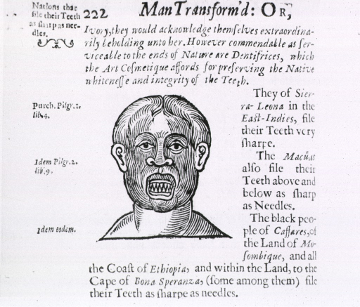 <p>Method of tooth mutilation by primative peoples - filing to sharp points.  Includes descriptive text.</p>
