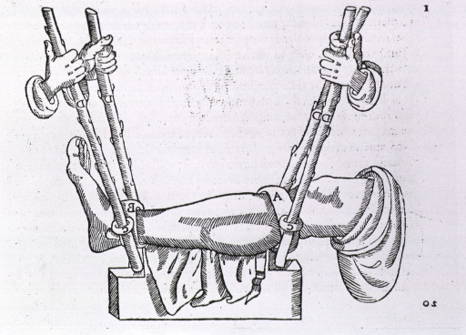 <p>Leg being turned (to set bone?) by means of two sticks below knee, two above ankle, used as levers.</p>