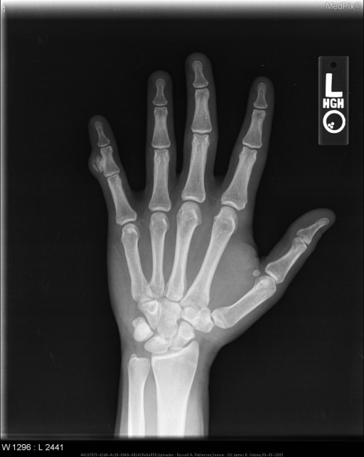 Anteroposterior radiograph of the left hand shows a well-marginated area of ossification arising from the cortical surface of the ulnar aspect of the 5th middle phalanx.  There is no disruption of the cortex and no communication with the medullary canal of the underlying bone.  This is consistent with BPOP.
