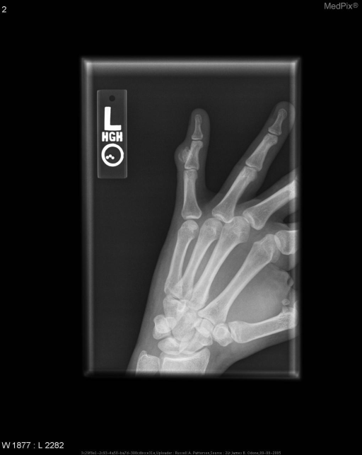 Oblique radiograph of the fifth digit of the left hand shows a well-marginated area of ossification arising from the cortical surface of the ulnar aspect of the 5th middle phalanx.  There is no disruption of the cortex and no communication with the medullary canal of the underlying bone.  This is consistent with BPOP.