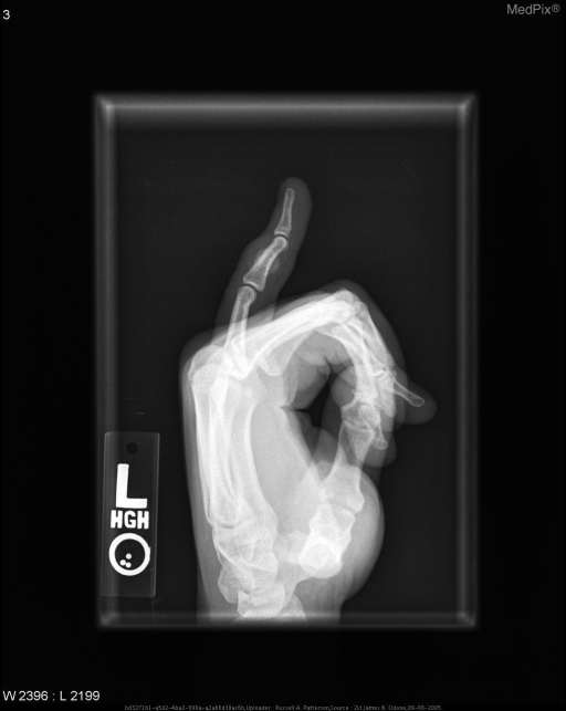 Lateral radiograph of the fifth digit of the left hand shows a well-marginated area of ossification arising from the cortical surface of the ulnar aspect of the 5th middle phalanx.  There is no disruption of the cortex and no communication with the medullary canal of the underlying bone.  This is consistent with BPOP.