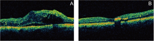 Preoperative OCT scan (A) shows diffuse macular thickening of 505 µm. Postoperative OCT scan (B) performed 3 months after vitrectomy shows reduction in macular thickness (202 µm) and a restoration of the foveal contour.