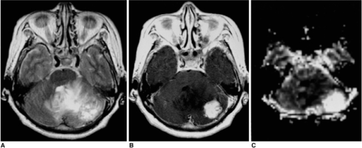 Solid hemangioblastoma in a 62-year-old woman. Conventional T2-weighted MR image (A) shows that in the left cerebellum, a lobulated mass with inhomogeneously high signal intensity is present. Enhanced T1-weighted MR image (B) shows strong enhancement. rCBV map (C) demonstrates very high rCBV (ratio, 40.75).