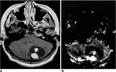 Figure 6 perfusion mr imaging clinical utility for the for Cystic lesion with mural nodule